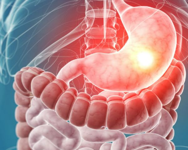 Gastroenterological Surgeon
