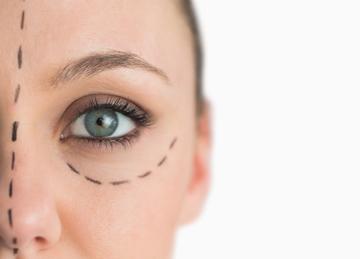 Oculoplastic Surgeon