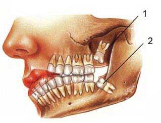 Oral & Maxillofacial