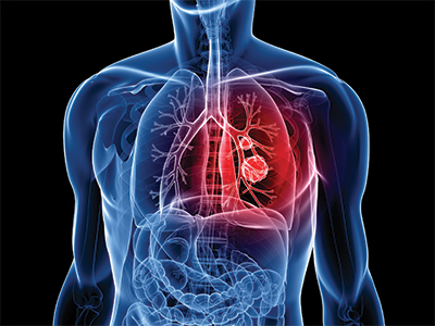 Cardiothoracic Surgeons