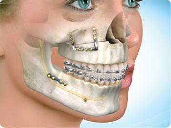 Dental And Maxillofacial Surgeon