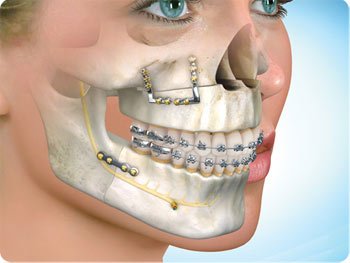Dental And Maxillofacial Surgeon